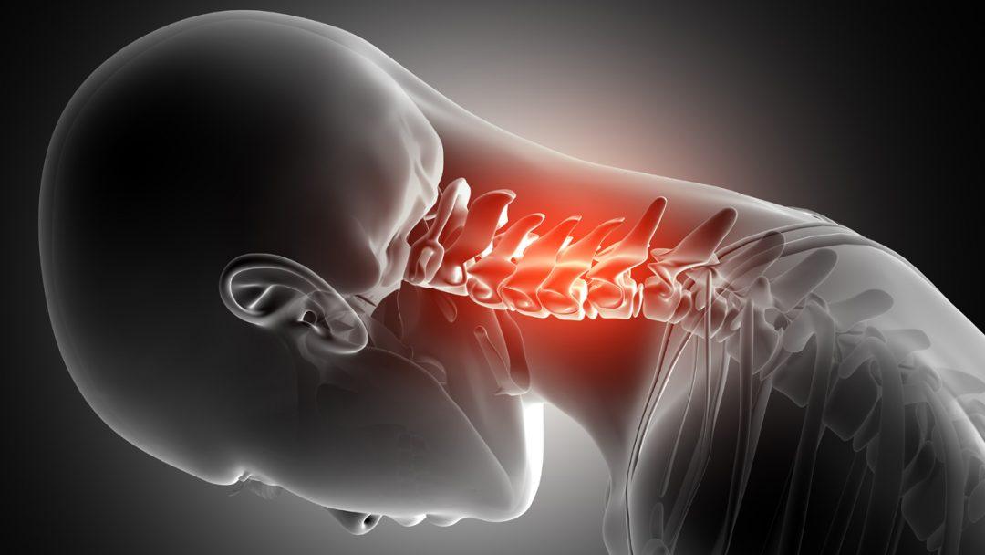 3 Dicas para Aliviar a Dor no Pescoço e Ombros